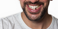 Dental Restoration Services